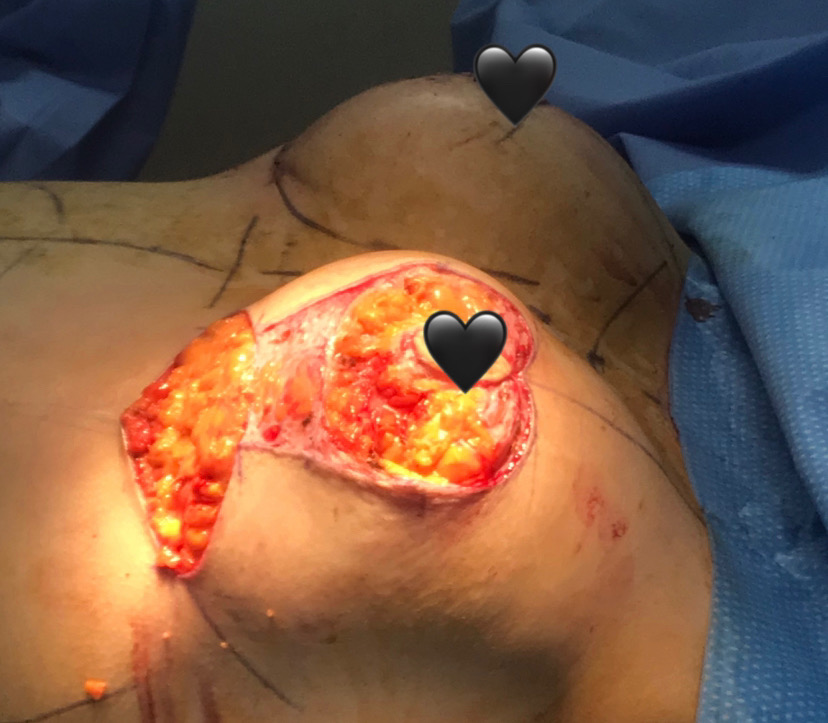 Breast surgery pic