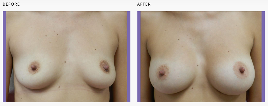 2 different sized breasts