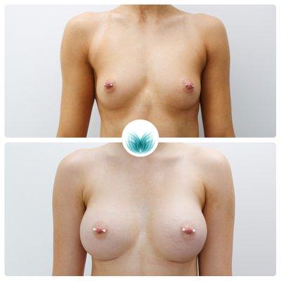 Breast augmentation patient before & after 05, 285cc, moderate profile, Inigo Cosmetic Brisbane