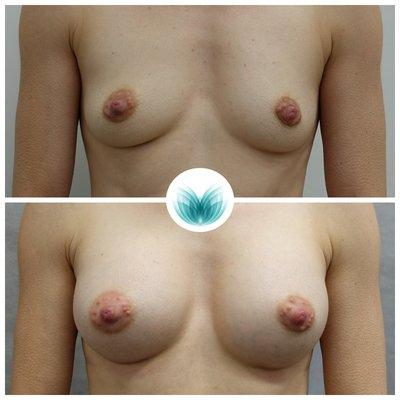 Patient before & after boob job surgery 04, 285cc, high profile, Inigo Cosmetic