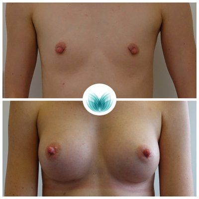 Breast augmentation with implants 03, before & after (255cc teardrop), Inigo Cosmetic
