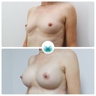 Patient before & after breast augmentation 375 cc, round, moderate profile, Inigo Cosmetic