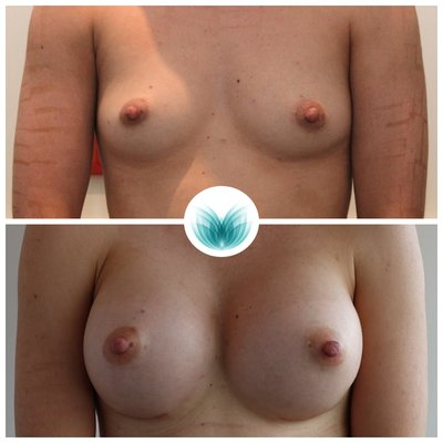 Breast implants 380cc, before and after, round, high profile, dual plane