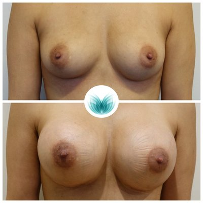Patient before & after breast implants surgery 09, 360cc, high profile