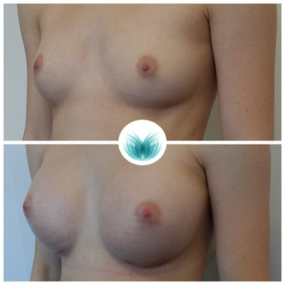 Breast implants surgery 08, Dr Ian Chinsee Brisbane, 325cc