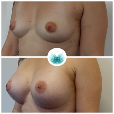 Patient before & after breast augmentation 450cc, round, high profile, Dr Chinsee 17