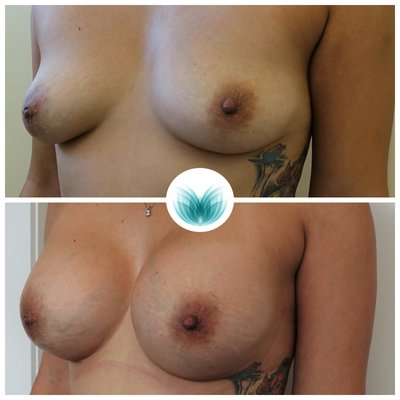 Patient before & after boob job 430cc, Dr Chinsee 16
