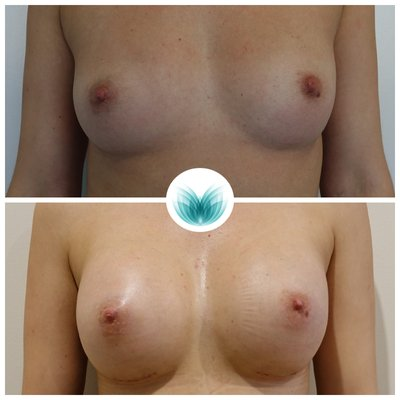 Breast implants 400cc, high profile, dual plane, Dr Chinsee 15