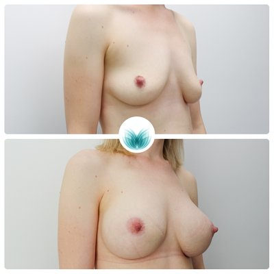 Before and after breast augmentation 24, 425cc, high profile, Inigo Cosmetic