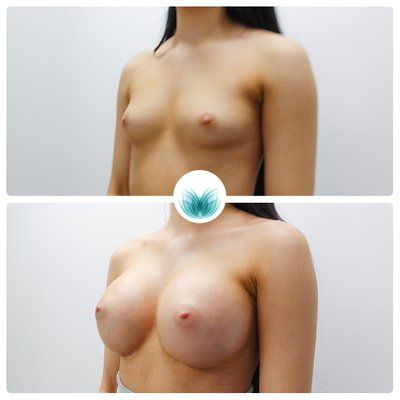 Breast Implants 420cc, before & after surgery 19, Inigo Cosmetic Brisbane