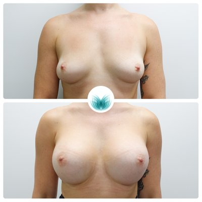 Breast augmentation 500cc implants, before & after 32, Dr Chinsee