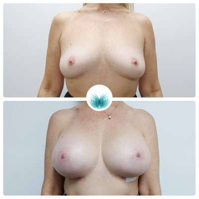 Breast augmentation (590cc implants) before & after 31