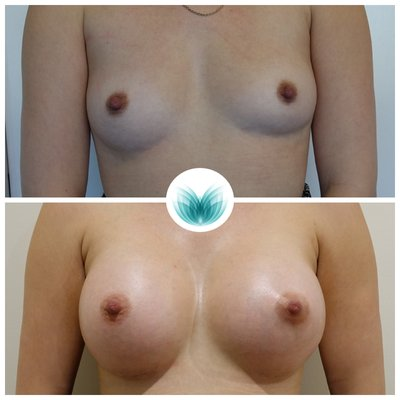 Breast implants before and after (550cc round) surgery 30, Inigo Cosmetic