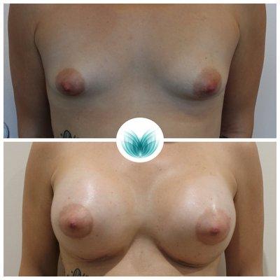 High profile breast augmentation 29 (545cc implants), Inigo Cosmetic