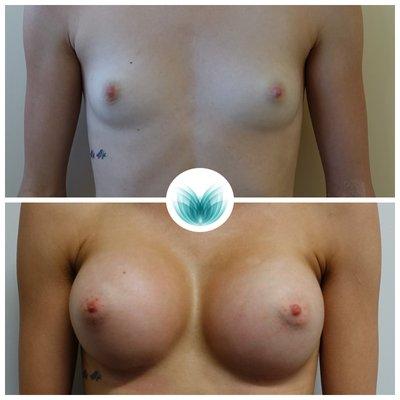 Dual plane breast augmentation (545cc), Inigo Cosmetic 28