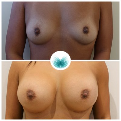 Patient (505cc) before and after dual plane breast augmentation, Inigo Cosmetic Brisbane