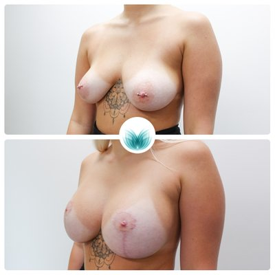 Breast augmentation and lift, 325cc with full lift, Dr Chinsee Brisbane