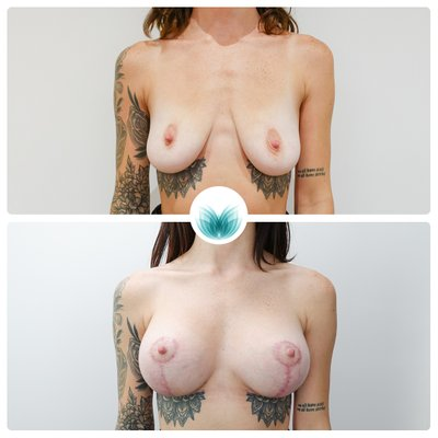 Breast augmentation and lift patient, before & after, 375cc with full lift, Inigo Cosmetic Brisbane