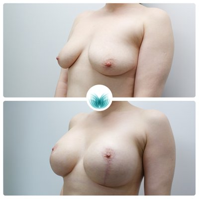 Patient before & after breast augmentation with full lift 460cc, Inigo Cosmetic Brisbane