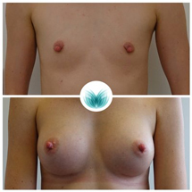 Breast augmentation with implants before and after 01, Inigo Cosmetic Brisbane