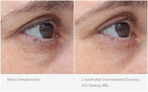 TempSure skin tightening before & after photo 01, Inigo Cosmetic Brisbane