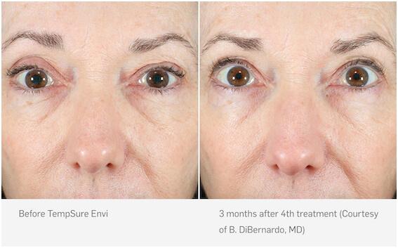 Patient before and after TempSure skin tightening, Inigo Cosmetic Brisbane