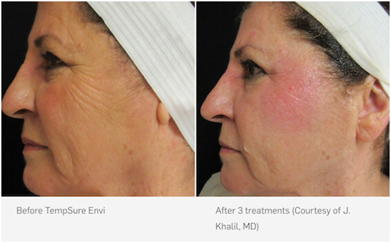 TempSure Skin Tightening before and after 03, Inigo Cosmetic Brisbane