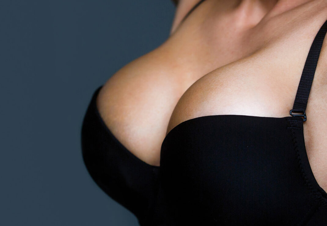 drop and fluff timeline breast augmentation recovery img | Inigo Cosmetic