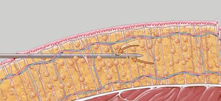 Vaser liposuction procedure, stage 3, Inigo Cosmetic