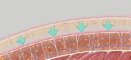 Vaser liposuction procedure, stage 4, Inigo Cosmetic